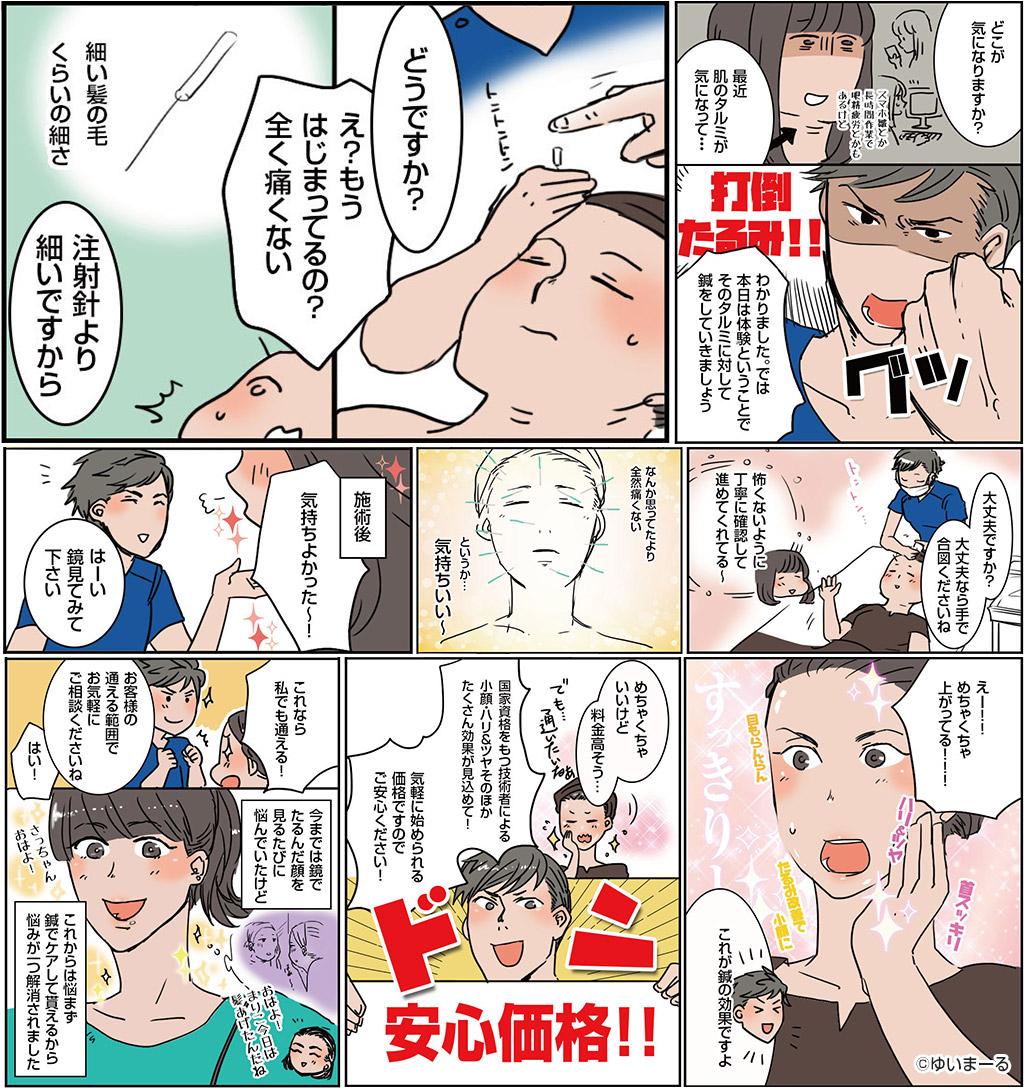 美容鍼漫画