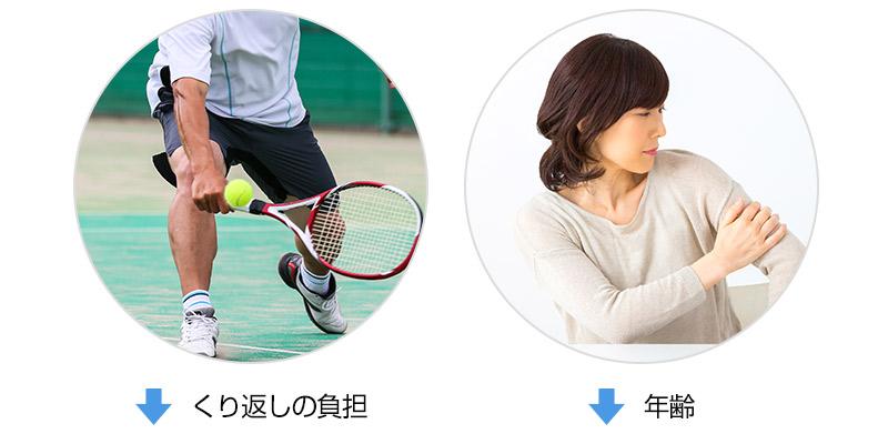 テニス肘原因
