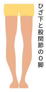 ひざ下と股関節のO脚